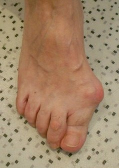 opération hallux valgus mini invasive-se chausser avec hallux valgus