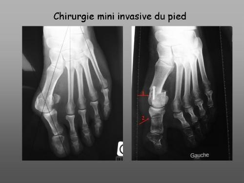 chirurgie mini invasive hallux valgus paris-hallux valgus orthopédie