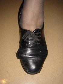 chaussure hallux valgus femme-opération pied hallux valgus prix